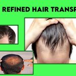 Keys to Most Refined Hair Transplant
